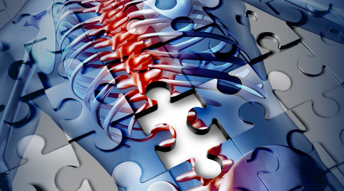 Human back disease medical concept as a jigsaw puzzle